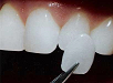 Protetické zubné lekárstvo - 4. ročník