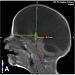 Vybrané kapitoly z detskej neurochirurgie I