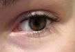 Vybrané kapitoly z oftalmológie